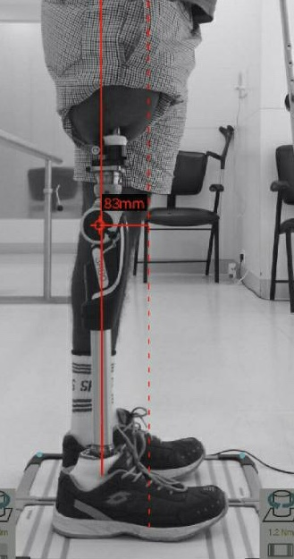 Leg replacement