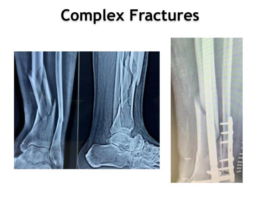 Complex fractures